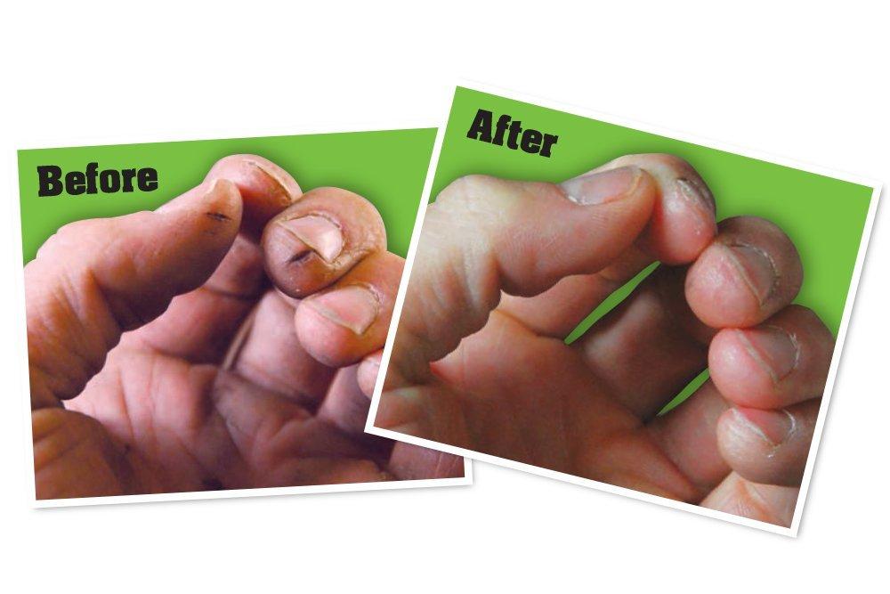 Working Hands Handcreme - Wirkung vorher nachher